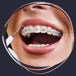 ortodonz